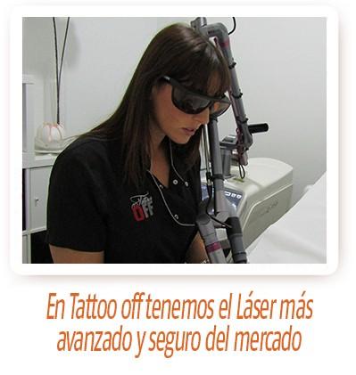 ZAHIRA EN TATTOO OFF. Eliminación de tatuaje.