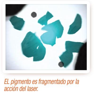 El pigmento se fragmenta por la acción del laser