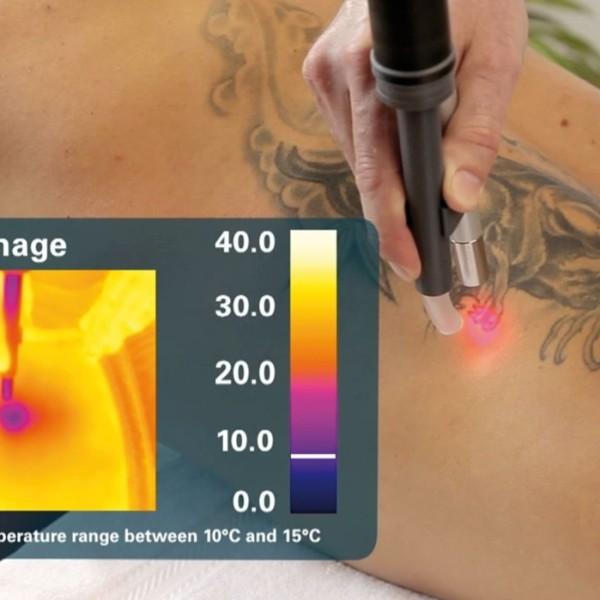 Temperatura durante la eliminación de tatuaje en Córdoba