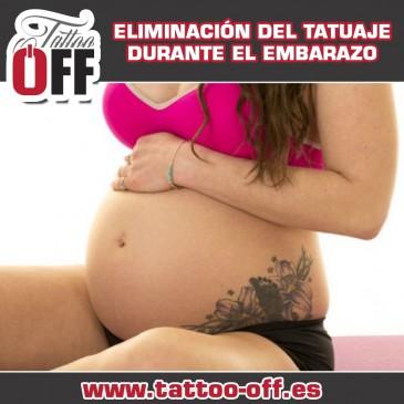 Eliminación de tatuaje estando embarazada