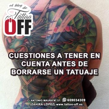 Cuestiones a tener en cuenta antes de borrar un tatuaje