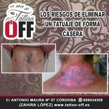 Riesgos de eliminar de forma casera un tatuaje