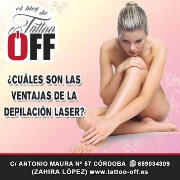 ¿Cuáles son las ventajas de la depilación laser?