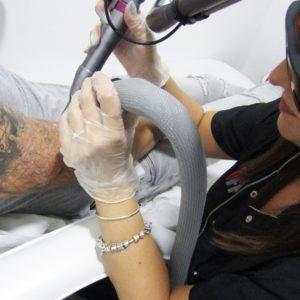 Eliminación de tatuaje en Córdoba