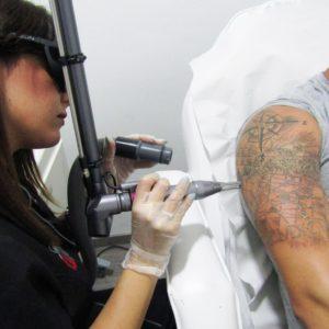 Eliminar tatuaje en Córdoba