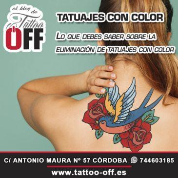 Lo que debes saber sobre la eliminación de tatuajes con color